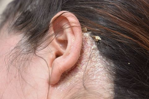 7 Common Scalp Issues - Bumps, Scabs, Sores & Pimples on Scalp