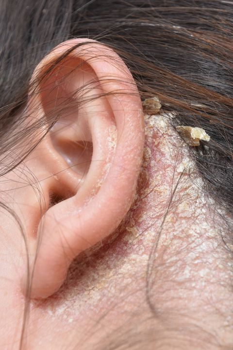 Ear, Skin, Face, Nose, Close-up, Organ, Neck, Flesh, Human body, Hand,