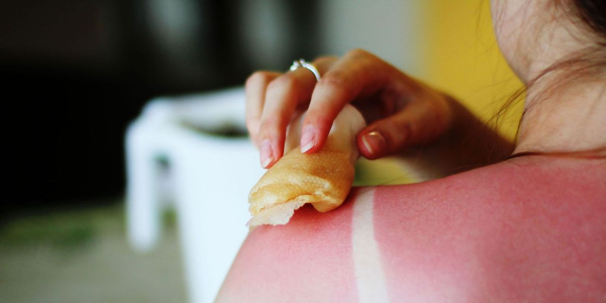 How To Treat Sunburn Naturally Natural Remedies To Soothe Sunburn