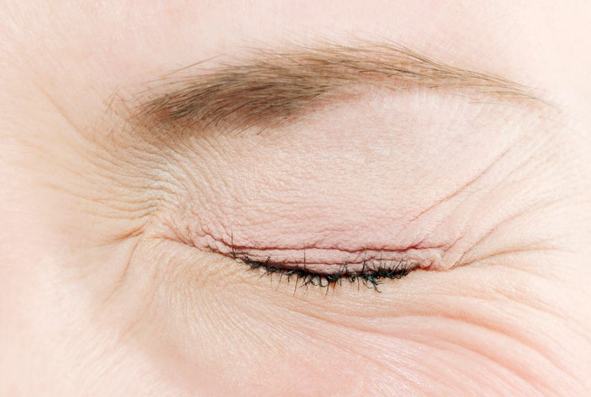 Habits That Ruin Your Eyes Eye Health