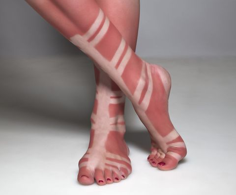 Non prendete il sole con i sandali, specie quelli alla schiava.