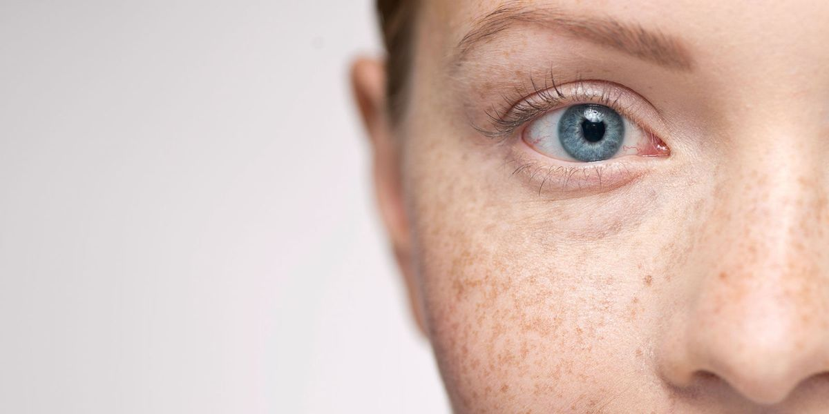 #SkinSchool: The truth about freckles, melasma and hyperpigmentation
