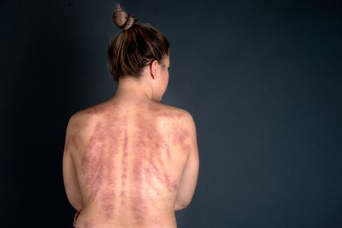 The Shockingly Grotesque, Yet Incredible Results of Gua Sha Massage