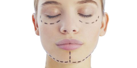 The New No-Knife Face-Lift - Painless Face-Lift Procedures