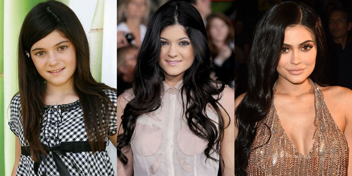 Kylie Jenner 2010 Vs 2015