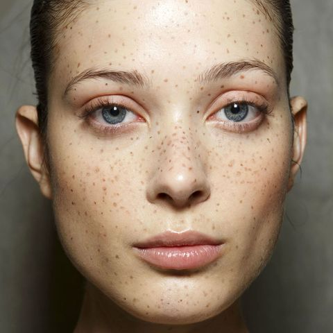 """freckles are the new """"it"""" beauty mark  freckles"""
