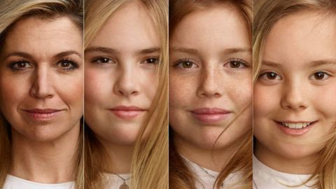 Face, Hair, Skin, Eyebrow, Nose, Forehead, Chin, Cheek, Lip, Facial expression,
