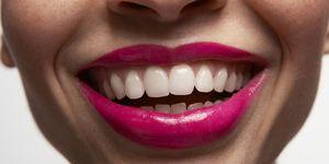Mond met witte tanden