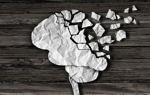 alzheimers or forgetful