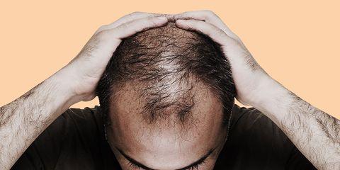 end balding and greying