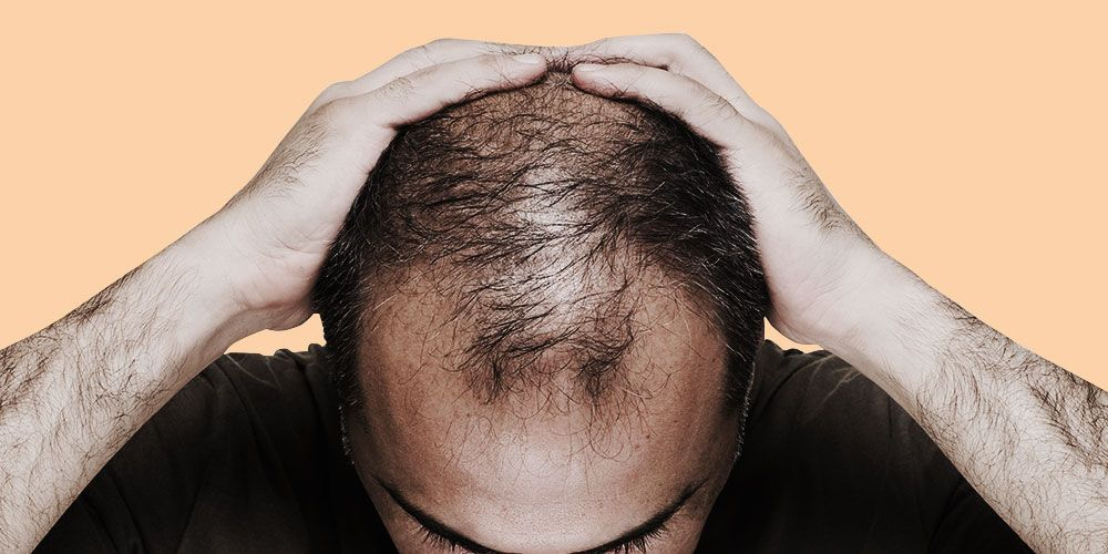 end balding and greying