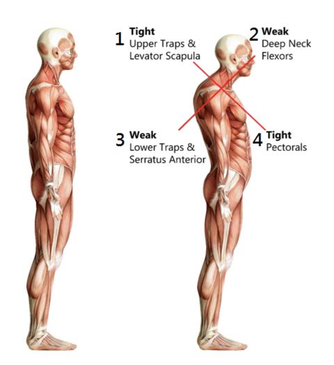 圓肩,厚背,背部訓練,薄背,少女背,肩膀,直角肩