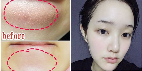 Face, Nose, Skin, Eyebrow, Forehead, Cheek, Chin, Head, Lip, Jaw,