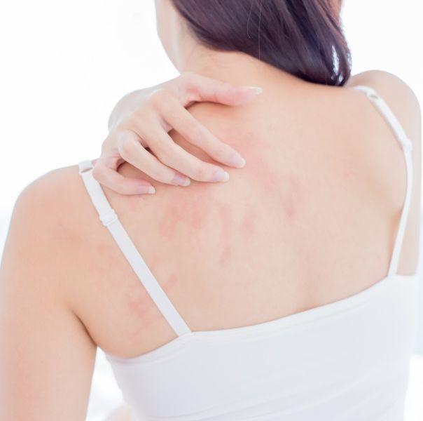 皮膚紅癢過敏、濕疹一直好不了!中醫師公開舒緩建議飲食及有效預防治療方法