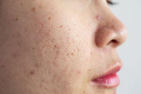痘痘預防 凹疤、色素疤怎麼形成 去黑頭