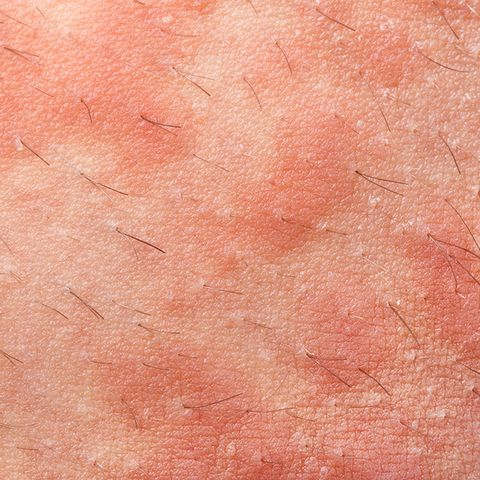 types of rashes