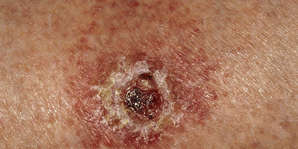 open sore skin cancer symptom