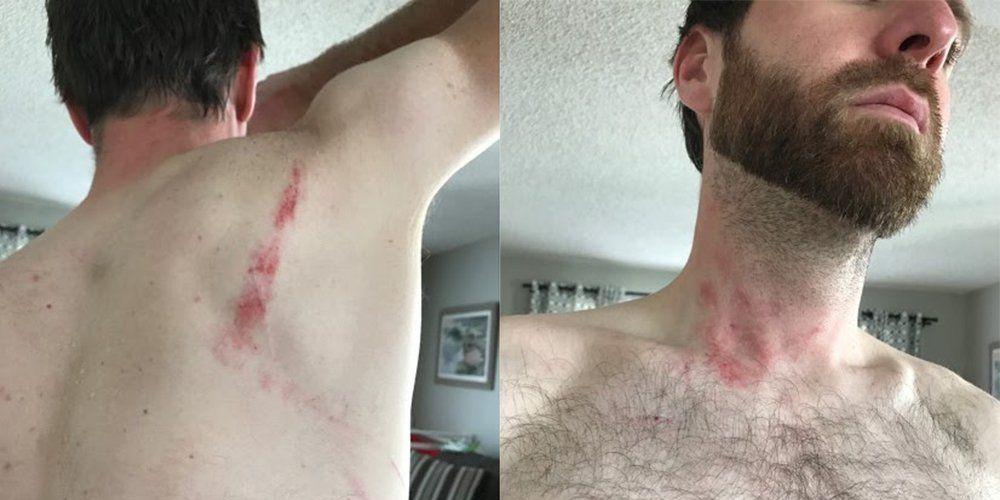 drunkcyclist golden colorado mountain biker assaulted by trail runner