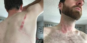 drunkcyclist golden colorado mountain biker assaulted by trail runner