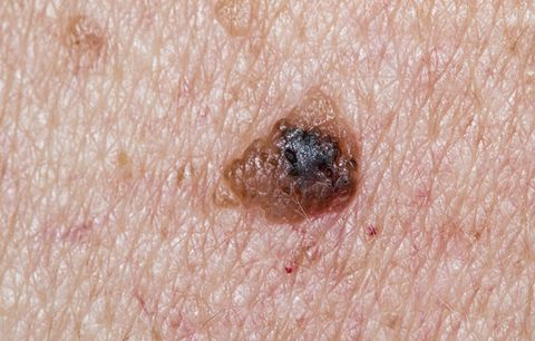 Signs of Skin Cancer: black mole