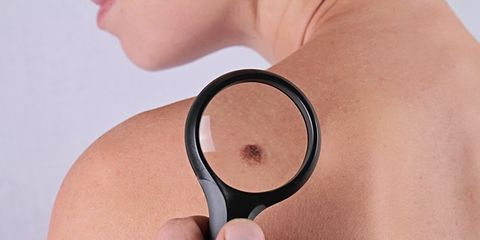 Signs of Skin Cancer: Mole