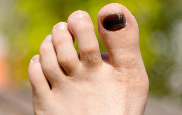 5 Causes of Black Toenails—and How to ID the Harmless From the ...