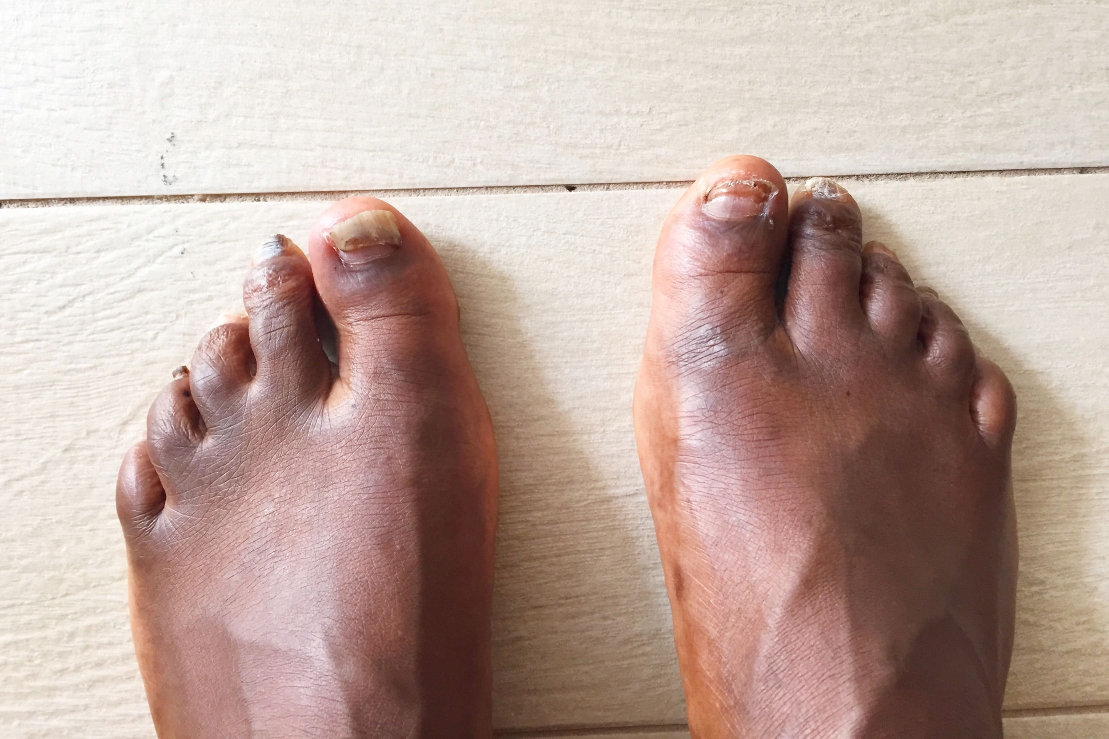 Feet have why ugly guys do How to