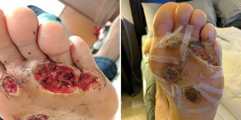 man foot fungus barefoot shower at gym