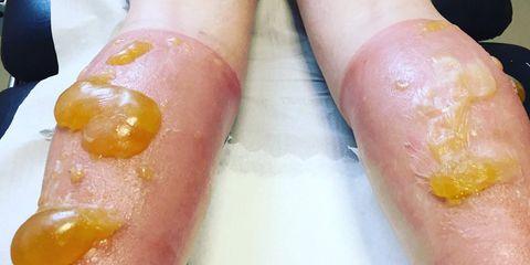 sunburnt runner gets orange skin blobs after 69 mile run