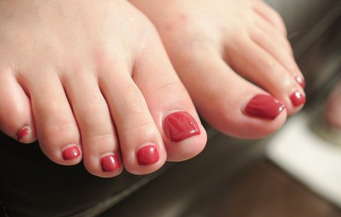 What to do if you rip off a toenail