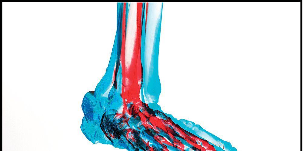 Low Intensity Pulsed Ultrasonic Bone Stimulation Runner S World