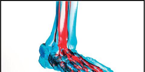 Low-Intensity Pulsed Ultrasonic Bone Stimulation injury treatment