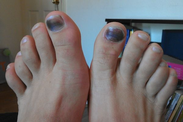 9 Sneaky Reasons Your Feet Hurt