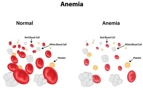 anemic blood cells