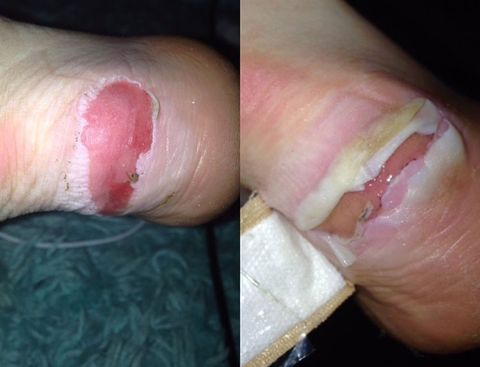 Bridget Mitchell's blister