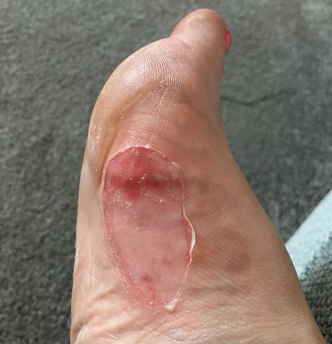 Jackie Gourley's blister