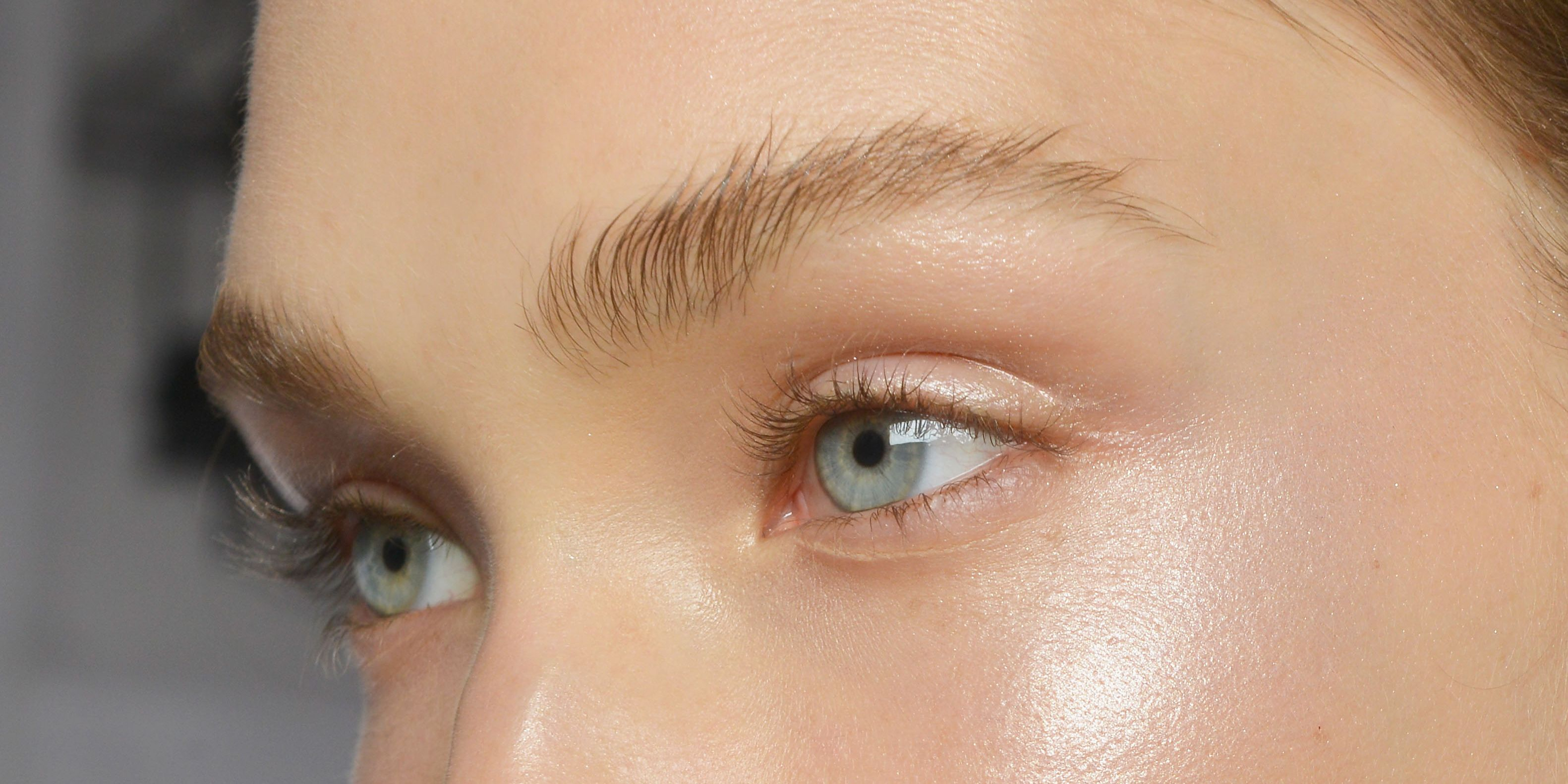 You CAN get rid of dark under-eye circles, says doctor―and this is how