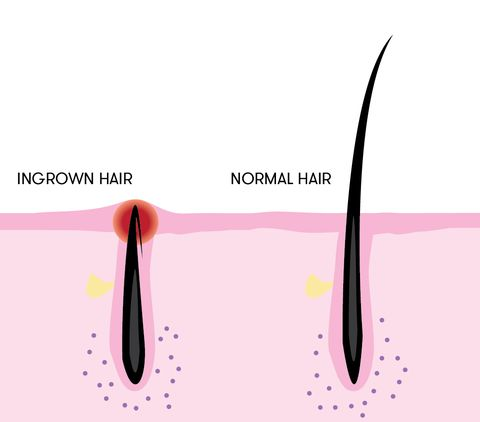 Here's How You Should Safely Be Getting Rid of Your Ingrown Hairs