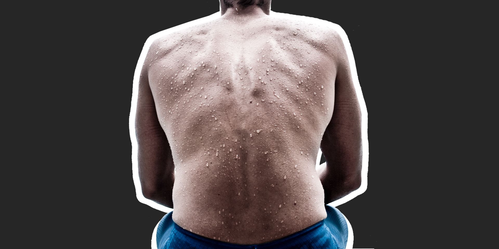 How To Get Rid of Back Acne For Good, According to an Expert