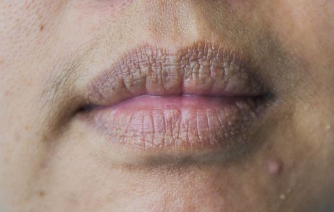 Minor Skin Problems That Could Signal Serious Conditions | Men's Health