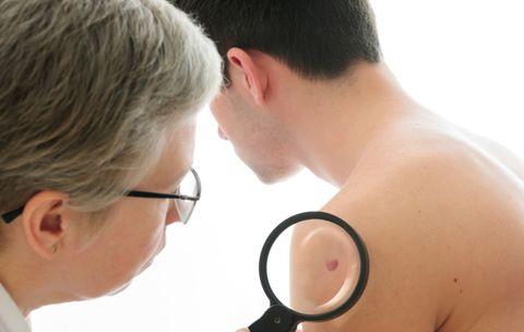 News Every Skin Cancer Survivor Must Know