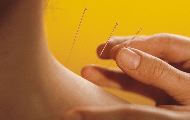 5 ways acupuncture can fix your health problems acupunctureg solutioingenieria Gallery