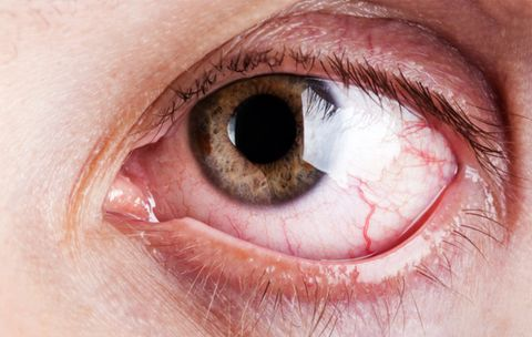 Here's Why Your Eyes Feel Like Gritty Sandpaper Right Now