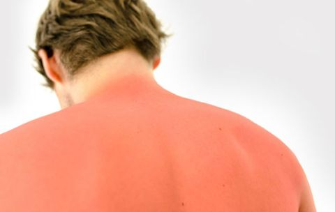 The Best Home Remedies for Sunburns