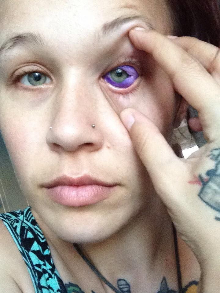 This Woman S Botched Eyeball Tattoo May Leave Her Blind In One Eye