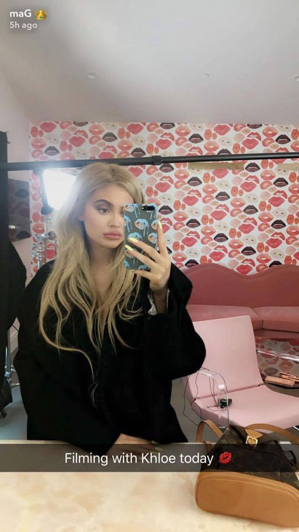 22385200 1481773421858185 1156985632 n 1507642091 Kylie Jenners Baggy Blouse Photo Sparks More Pregnancy Rumors