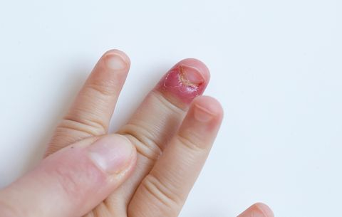7 Gross Things That Happen When You Bite Your Nails | Prevention