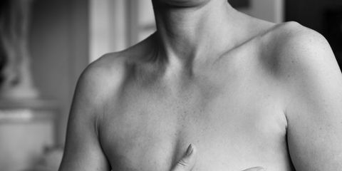 Woman's surprising sign of breast cancer