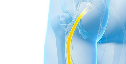 11 Sciatic Nerve Pain Treatments Sciatica Cures Proven To Work