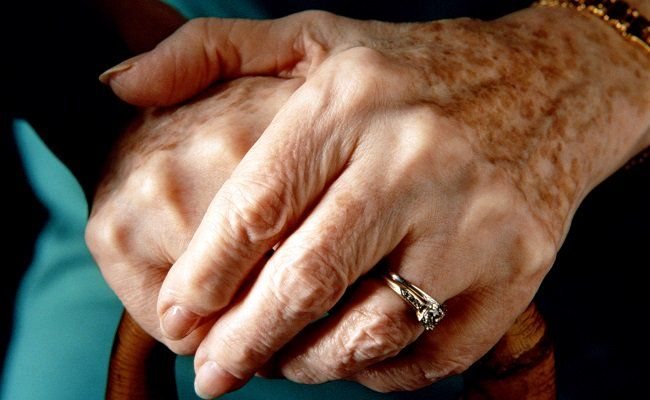 3 Best Ways To Get Rid Of Age Spots On Your Hands   Prevention